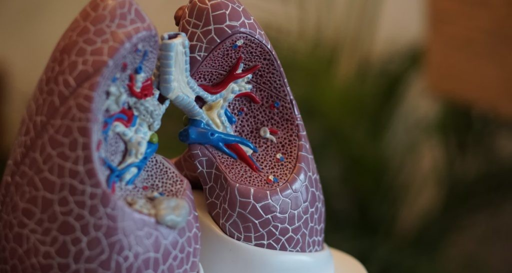COPD explained